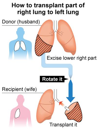 3Dプリンターで生体間肺移植手術