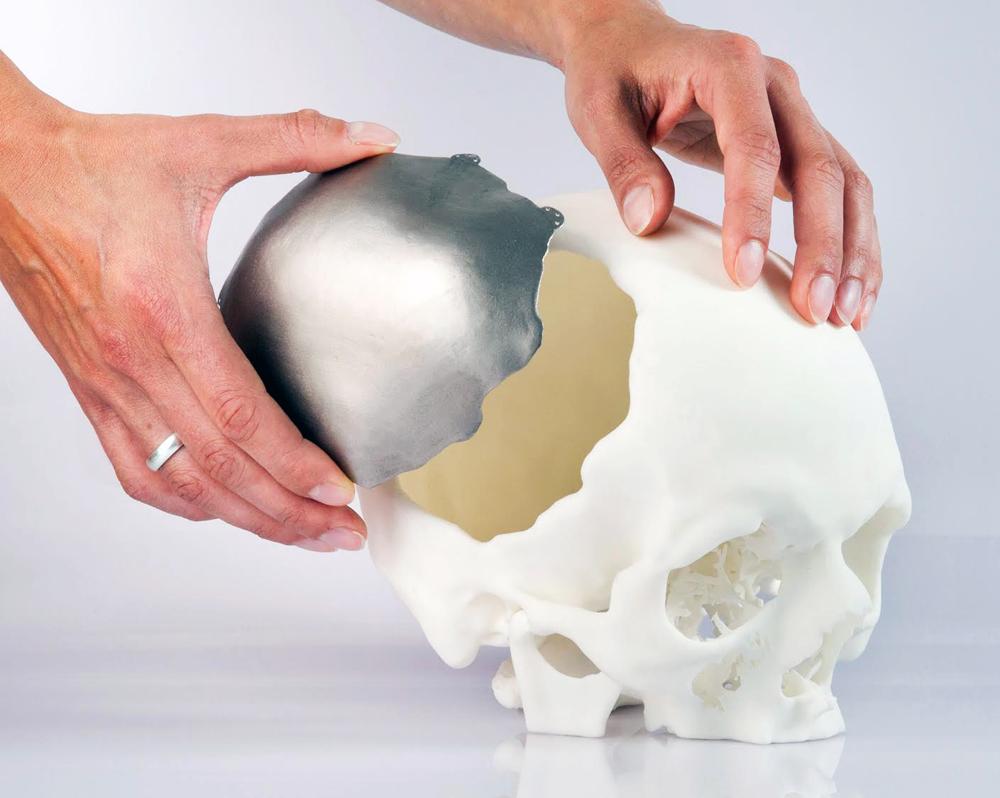 中国に続き、スロバキアでの頭蓋骨3Dインプラント手術