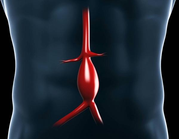 3Dプリント動脈瘤エンドグラフト