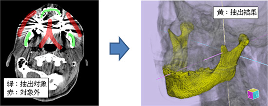 日本のサイバネット社による医療用CT画像から3Dデータをおこすソフトの発売