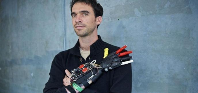 フランスでもThingiverseによる義肢、義手の格安3Dプリント