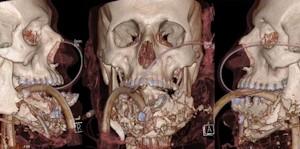 シリアの患者の顔を再生する