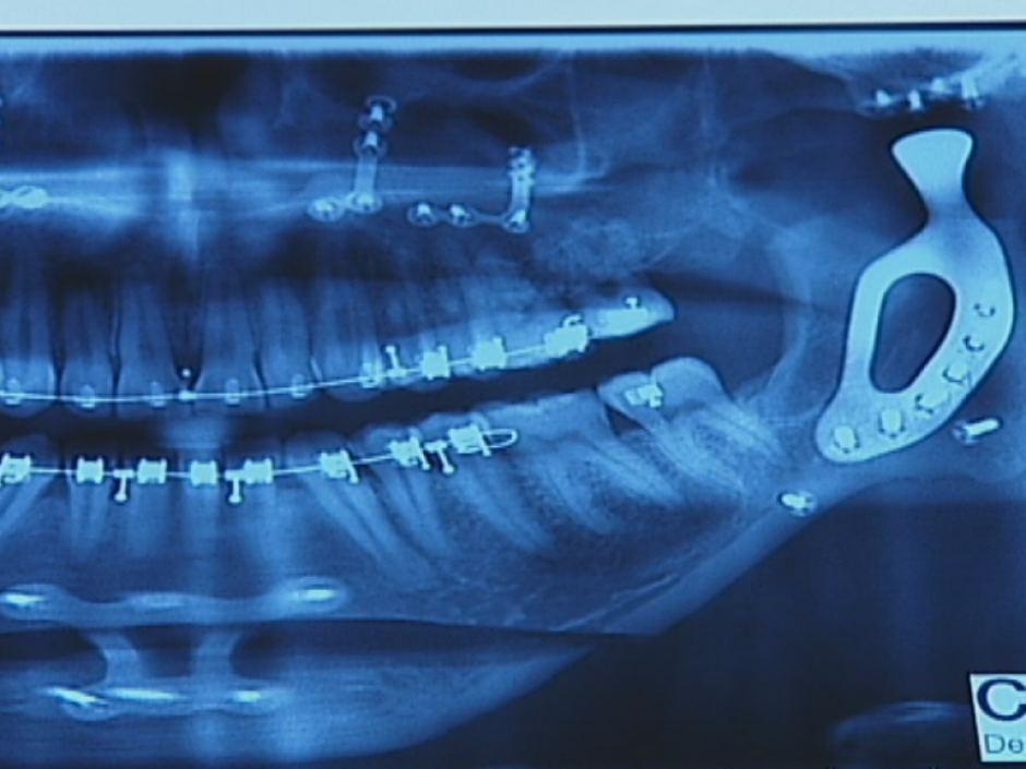 オーストラリアの患者が、3Dプリントチタン顎で、食べることが再びできるようになった。