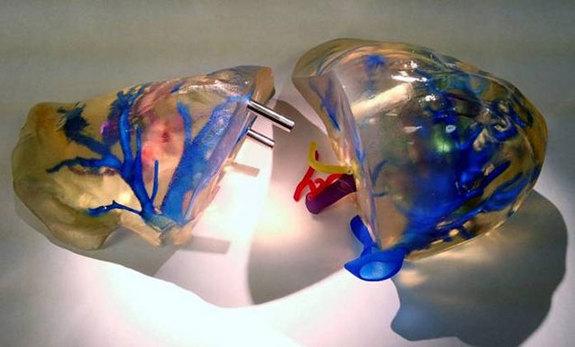 3dプリント肝臓