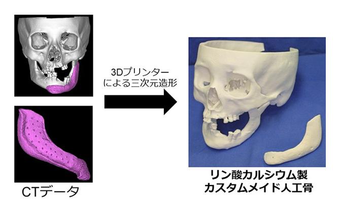 3Dプリンターの人工骨