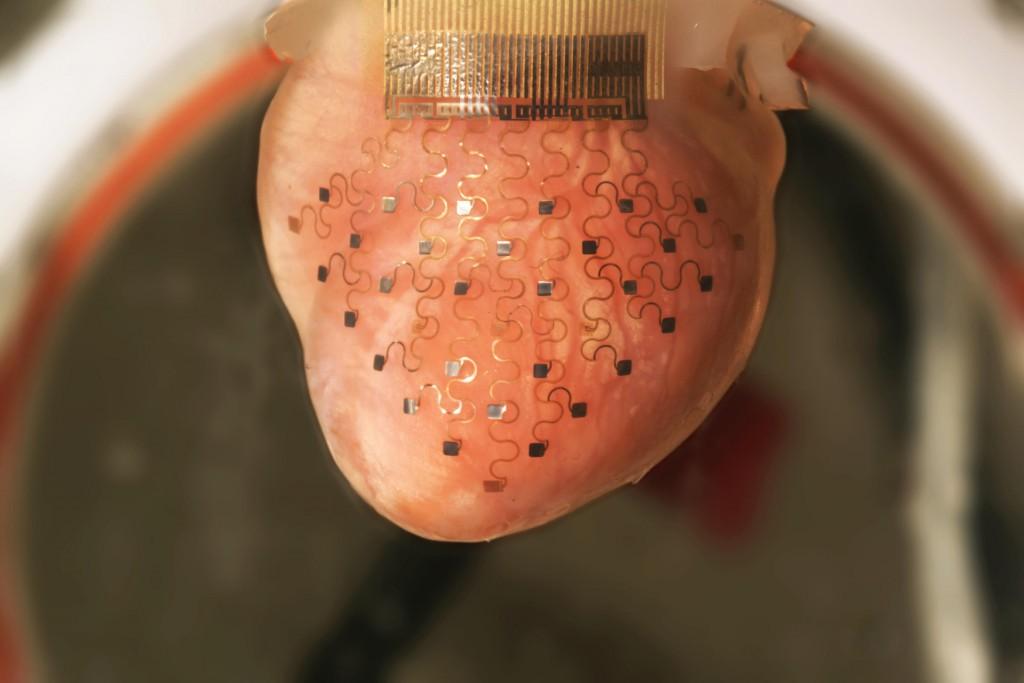 心臓デバイス